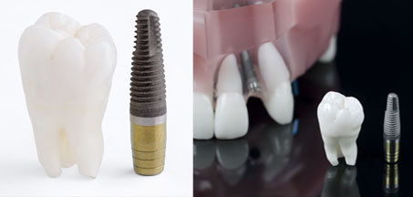 know-your-dental-implants