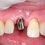 12_Abutment fitted to implant
