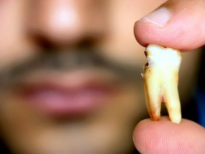 tooth loss cause