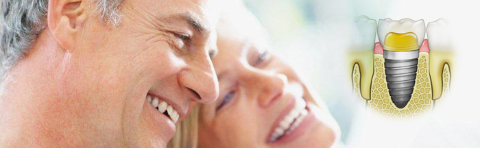 dental-implants-in-short
