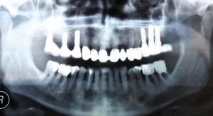 implant bone