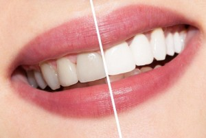 teeth whitening treatments