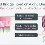 Acrylic Hybrid Fixed on 4 or 6 Dental Implants