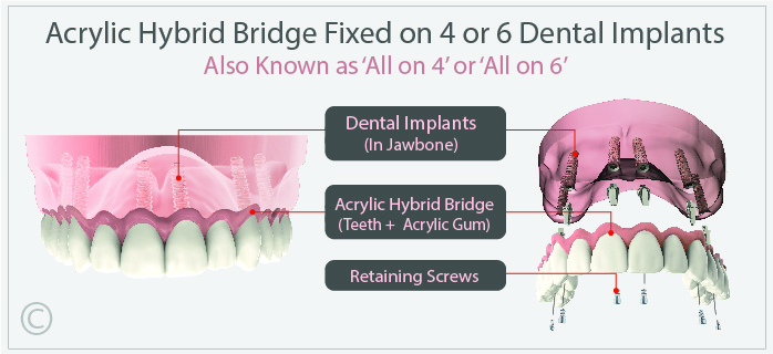 Acrylic Hybrid Fixed on 4 or 6 Dental Implants