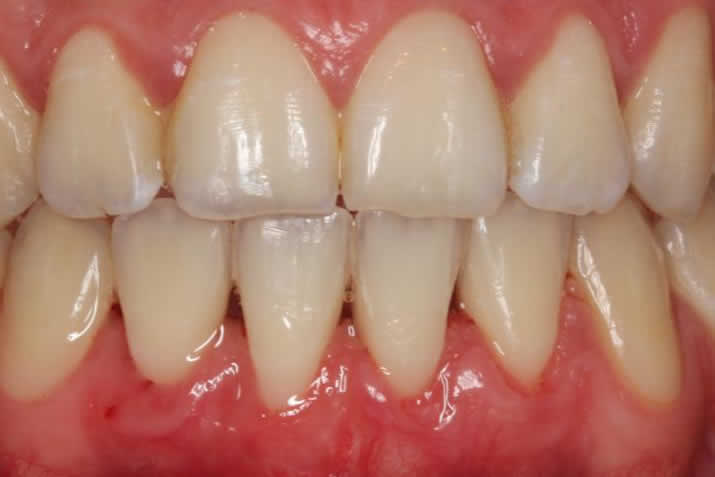 Coverage of gingival recession: connective tissue graft tunnel technique after