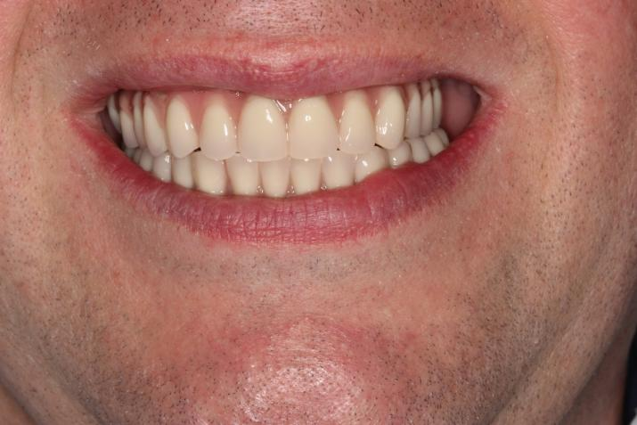 Full Mouth rehabilitation with srew retained implant prothesis After