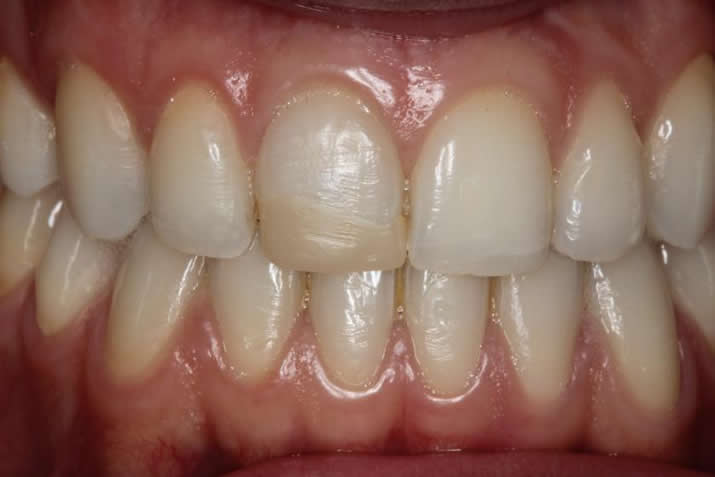 Single E-max veneer Before