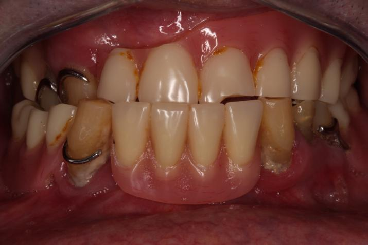 Full Mouth rehabilitation with srew retained implant prothesis Before