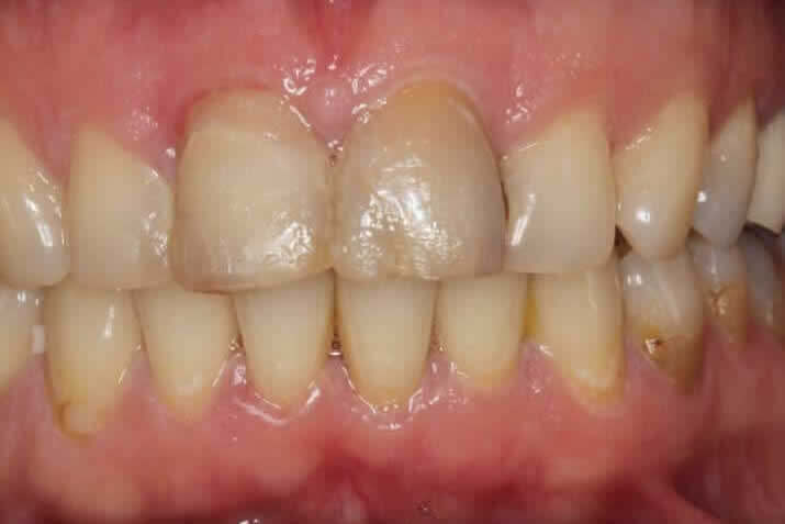 Ceramic crowns before