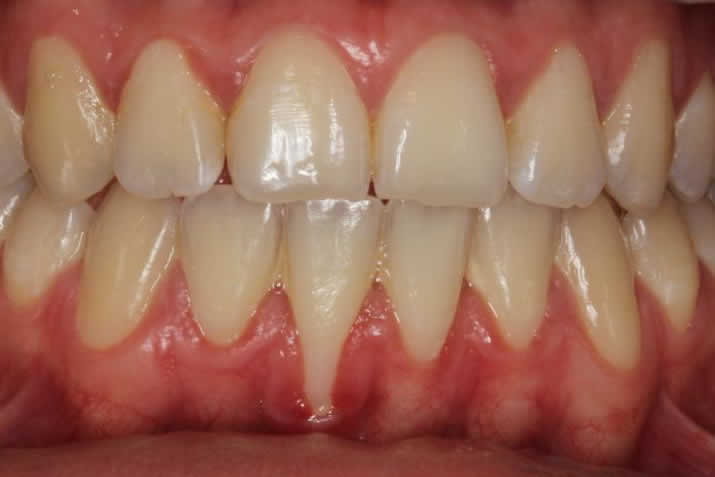 Coverage of gingival recession: connective tissue graft tunnel technique before