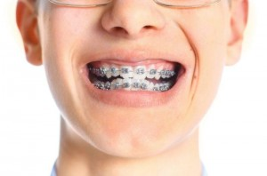 dental braces mouth sores