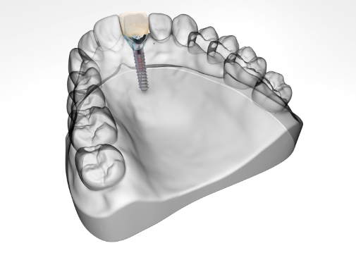 Complete Dental Implant with Crown