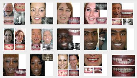 why Life Dental Implants