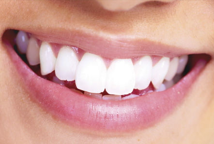 Looking For Affordable Dental Implants In London Combined With Experience And An Honest Clear Prices And Options Life Dental Implants