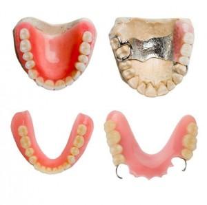dentures dentistry