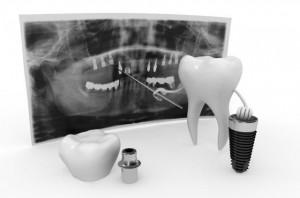 digital image implants