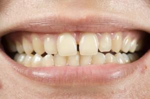 gum disease warning