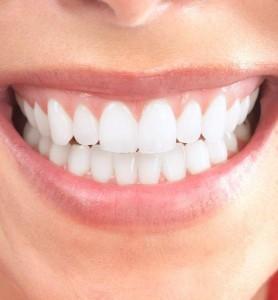 veneer smiles