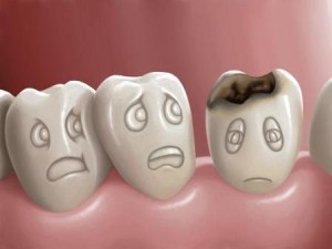 decayed damaged tooth