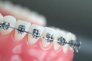 braces clean