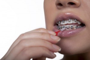 braces cleaning