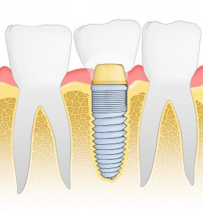 implants prevent shifting