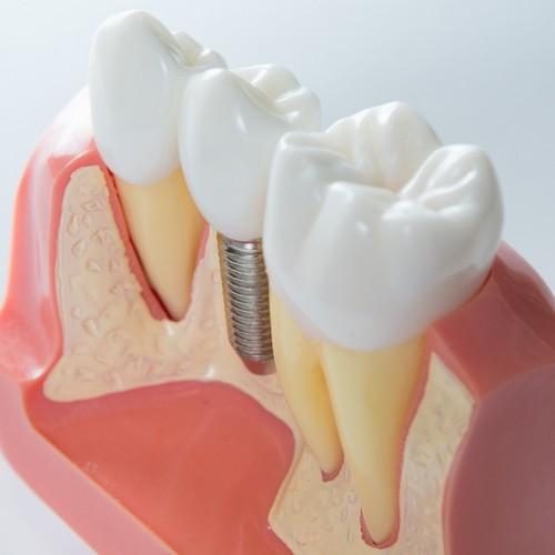 dental implant fit