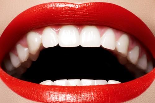 straigh teeth