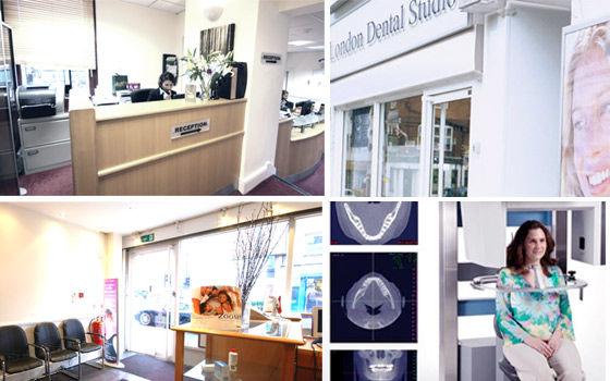 Life dental Implant clinic