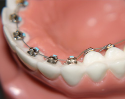 dental braces wire