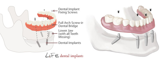 full mouth - same day dental implants