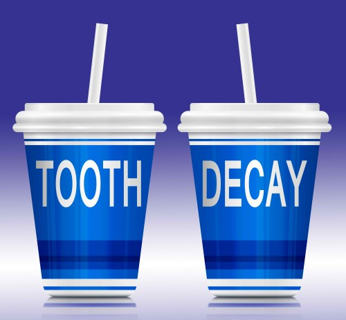 tooth decay img