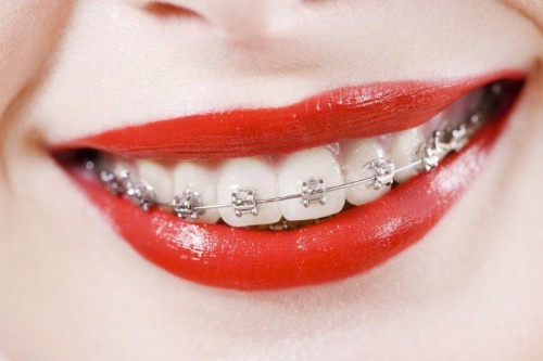 dental braces ortho