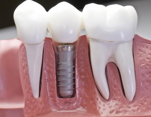 implants close gap