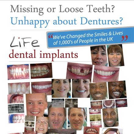 missing-or-loose-teeth