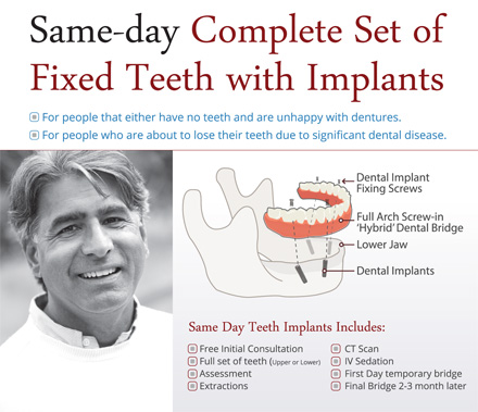 same-day-implants
