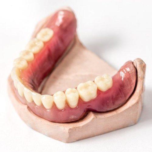 dentures-remove