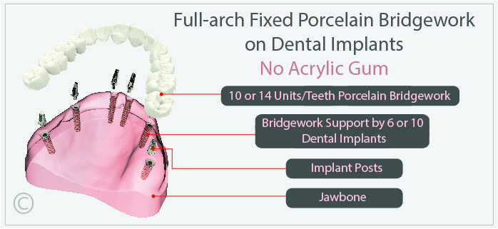 Full arch Fixed Porcelain Bridgework on Dental Implants